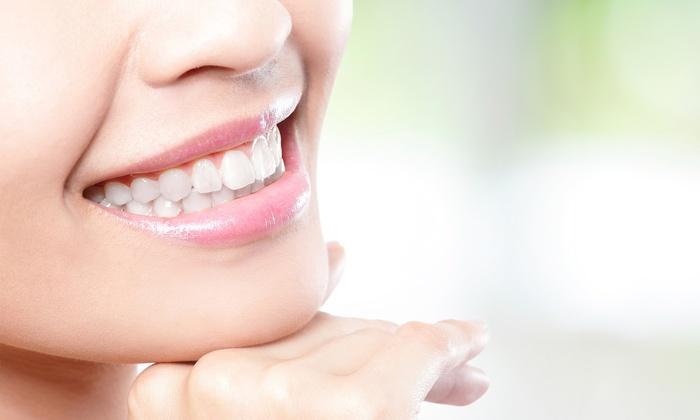 Kinh doanh online mặt hàng gì - sản phẩm trắng răng